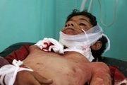 37 نفر از روزه داران یمنی کشته یا زخمی شدند/ عکس