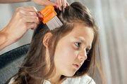 درمان رایگان دانشآموزان مبتلا به شپش