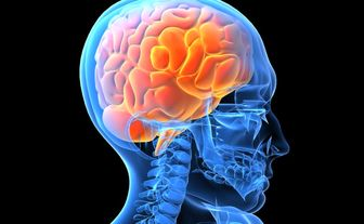 چند توصیه برای کاهش خطر سکته مغزی