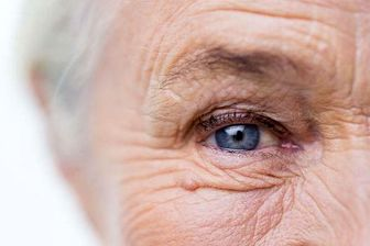 عواملی که پوستان را چروک میکند بشناسید