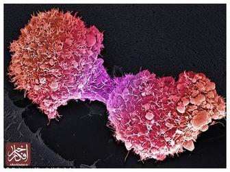 سرطان را با این تست خانگی ساده تشخیص دهید