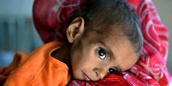 صدها هزار کودک مبتلا به سوءتغذیه شدید در افغانستان