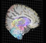 تهیه نخستین اطلس مغز انسان