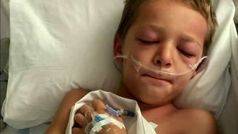 موج جدید بستری کودکان مبتلا به کرونا در آمریکا