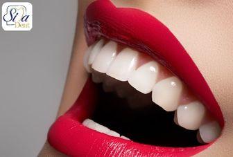 چگونه لبخندی هالیوودی داشته باشیم؟