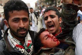ائتلاف سعودی-آمریکایی در یمن تا به امروز چند کودک را کشته اند