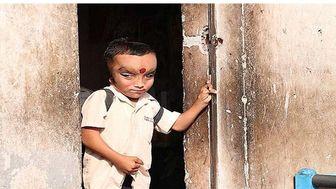 رفتار مردم هند با پسر بچه عجیب الخلقه(+18) + تصاویر