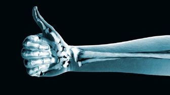 برای داشتن استخوانهای سالم چه کنیم؟ + اینفوگرافیک
