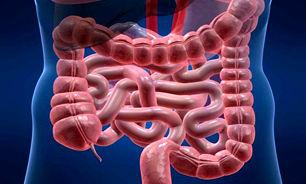 در مورد بیماری التهابی روده یا IBD بیشتر بدانید