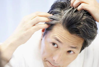 دلایل عجیب سفید شدن مو