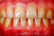 6 عادت بهداشتی که به دندانهایتان آسیب می زند