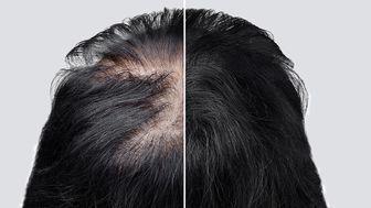 با این دو مکمل غذایی برای همیشه با ریزش موهایتان خداحافظی کنید
