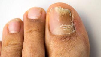 ۶ راهکار خانگی برای درمان قارچ ناخن پا