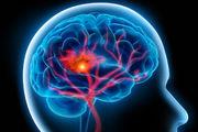 چرا جوانان سکته مغزی می کنند؟