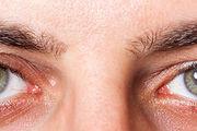 علت خشکی چشم چیست؟ + راهکارهای درمان آن
