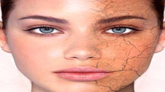 ۷ مادهای که پوست را جوان و شاداب نگه میدارد