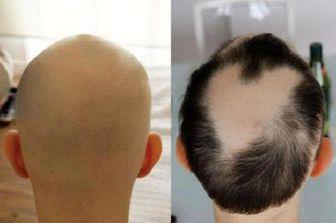 مصرف داروی آرتروز سبب رشد مجدد موها می شود