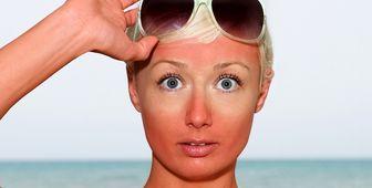 مناسب ترین درمان آفتاب سوختگی