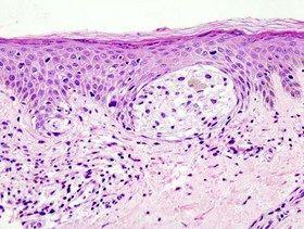 درمان سرطان پوست به کمک ویروس تبخال
