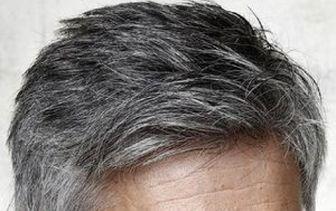 موهای سفید از وضعیت سلامتی ما چه میگویند؟