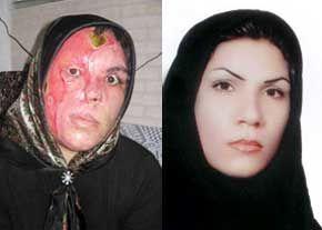 اسیدپاشی باز هم قربانی گرفت + عکس