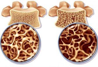 مهمترین فاکتور در پیشگیری از پوکی استخوان