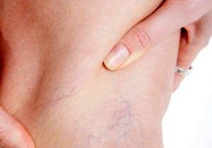 5 راهکار طلایی برای درمان دردهای واریس
