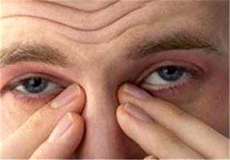 چرا دچار چشم درد میشویم؟ +درمان