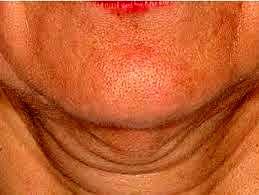 بایدها و نبایدهای جراحی زیبایی گردن