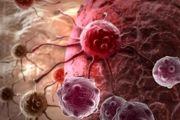 کدام سرطان از خانواده به ارث میرسد؟