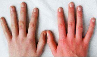 روانشناسی جالب انگشتان دست