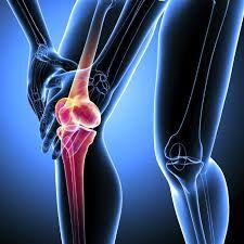 علائم نشان دهنده سرطان استخوان را بشناسید