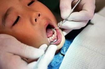 رابطه دندانهای خراب و کاهش عمر