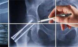 مهمترین علل شایع مرگ و میر بعد از ۴ سرطان