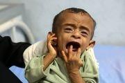 بحران سوءتغذیه کودکان در یمن/ گزارش تصویری