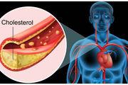صبحانه هایی که کلسترول خون را کاهش می دهند