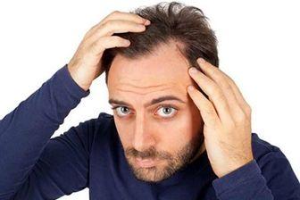 ۴۰ دلیل شایع ریزش مو + راهکارهای درمانى