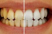 ۵ تصور نادرست درباره دندانها