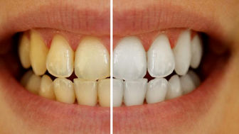 ۶ راه طبیعی سفید کردن دندانها