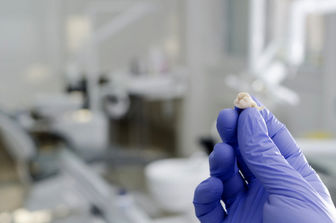دستگاهی عجیب که سلول های بنیادی را از دندان استخراج می کند