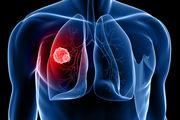 عوامل و راههای درمان سرطان ریه را بشناسید