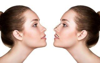 عوارض جراحیهای ناشیانه زیبایی بینی
