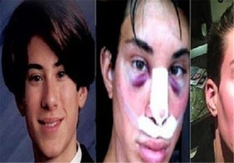 در کلینیکهای زیبایی مردانه چه خبر است؟/از عمل بینی با وام تا جراحی لبخند!