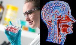 کشف گونه جدید سلولهای بنیادی مسؤول تفکر عالی