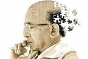 کشف ژنی که میتواند به درمان آلزایمر کمک کند