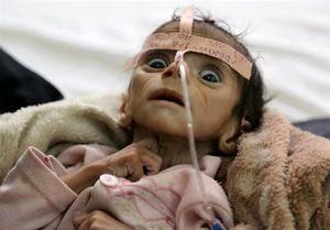 کابوس قحطی و گرسنگی برای کودکان یمنی