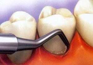 عوارض کشیدن زودرس دندان شیری