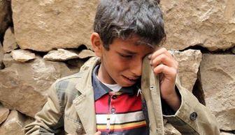 """آمار تکاندهنده """" یونیسف """" از سوء تغذیه کودکان یمنی"""