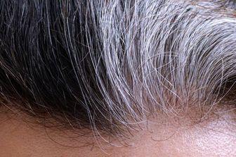 با این مواد غذایی موهایتان دیرتر سفید می شود