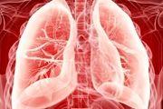 پیوند موفقیتآمیز ریه به بیمار کرونایی